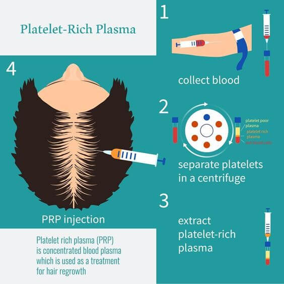 PRP therapy for hairloss